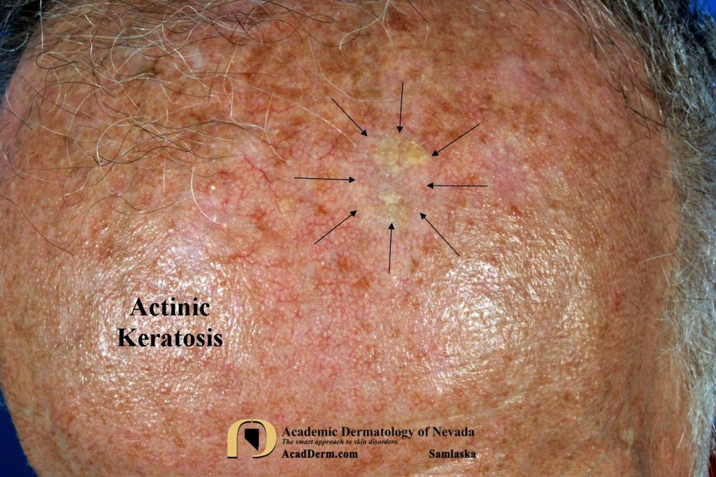 Actinic Keratosis: Treatment-Cryotherapy - Academic