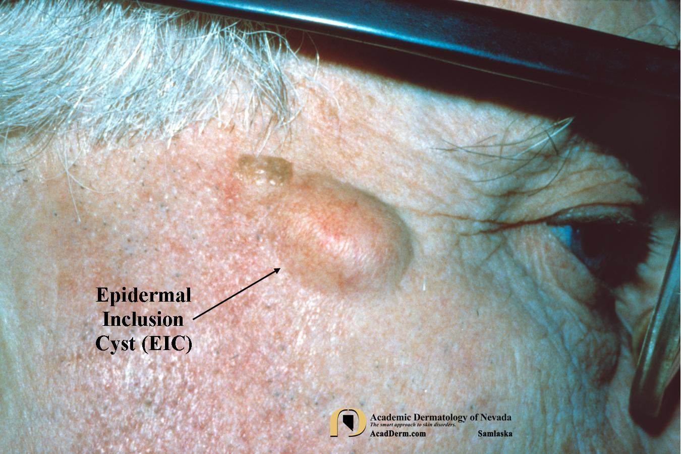Epidermal Inclusion Cysts  Eic   Epidermoid Cysts