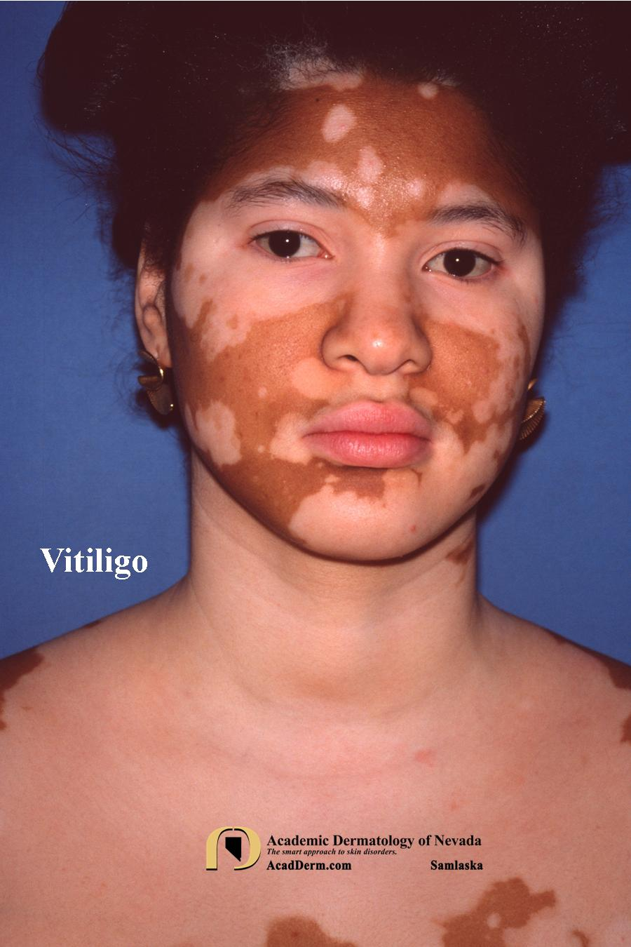 Vitiligo Leukoderma Sins Against The Sun Academic Dermatology Of Nevada